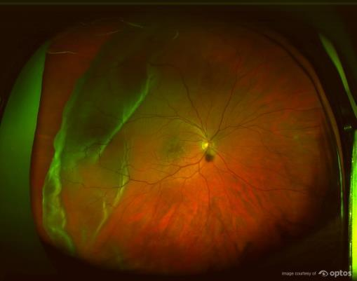 retinal detachement optos