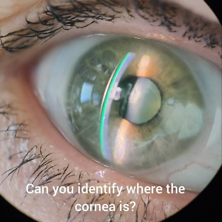 Cornea with scleral lens